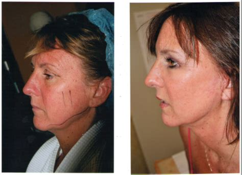 co2 fraxel temecula cosmetic surgery center