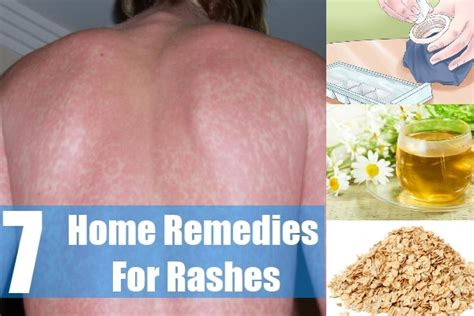 44 age spots home remedies treatment home remedy