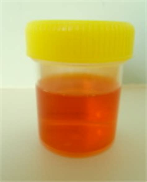 phenazopyridine urine color orange urine causes symptoms treatment diagnosis