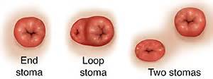what is a colostomy
