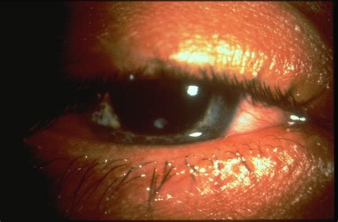 corneal ulcer pictures info corneal ulcer