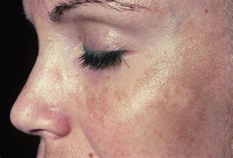 skin problems picture of melasma pregnany mask