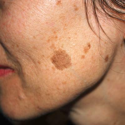 spot on treatment age spots birthmarks and pigmentation laser treatment