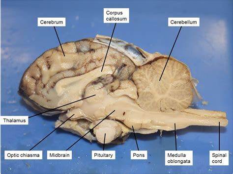 sheep diagram sheep brain dissection labeled diagram www pixshark