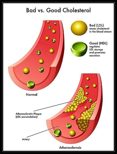 plant sterols lower blood cholesterol levels essential step cholesterol 850