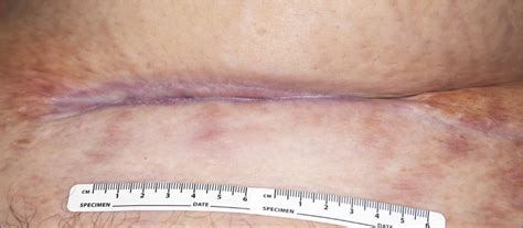 cellulitis after c section extensive adipose tissue necrosis following pfannenstiel