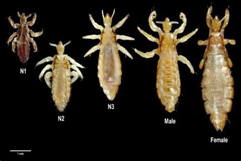 what do crab lice look like how to get rid of pubic lice crabs