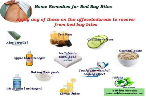 bed bug bites home remedies  bed bugs preventions updated