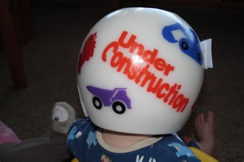 Cranio Helm Aufkleber by Littlebumpies Doc Band Starband Cranial Molding