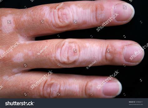 vitiligo images a with vitiligo skin stock photo 54986011