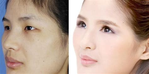 Designer Cosmetic Surgery Craze by Before And After This Is What The Plastic Surgery