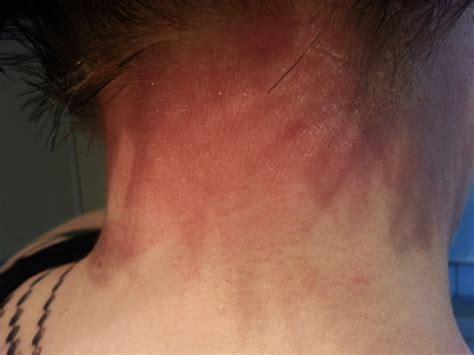 henna tattoo juckt was ist es allergische reaktion bewertung de