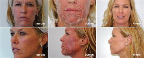 Tca 20 30ml By Azfida Skin Care the 25 best tca peel ideas on tca chemical