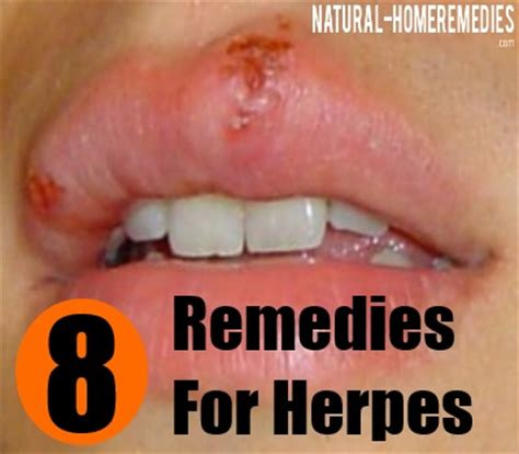 8 remedies for herpes how to prevent and treat