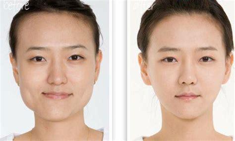 the square jaw line jawline slimming derma models