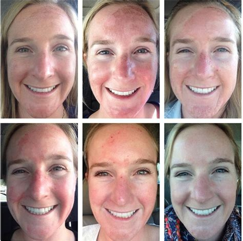 best skin peeling best 25 tca peel ideas on tca chemical peel