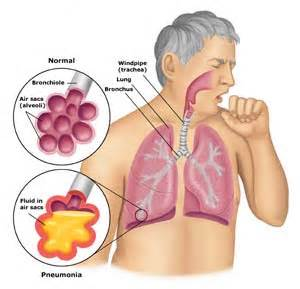 what is walking pneumonia symptoms treatment