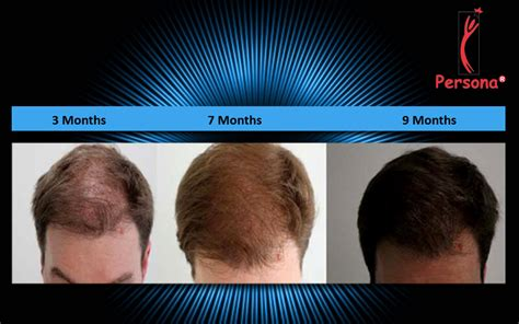 hair transplant timeline photos hair transplant growth timeline persona hair restoratio