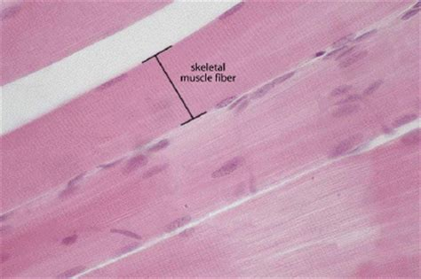 skeletal muscle longitudinal section description
