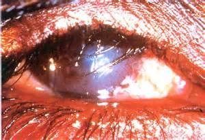 ocular blindness who priority eye diseases