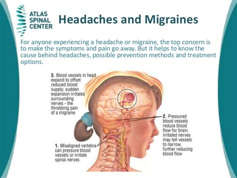 And Migraines Is It In Your by What Is Headaches And Migraines