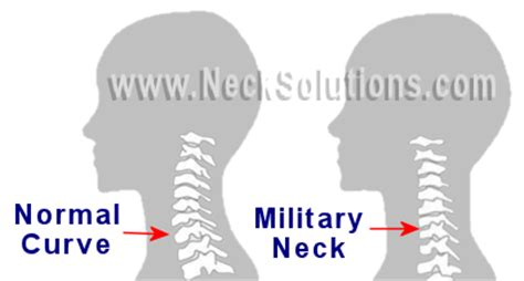 Is It Normal To Hump Pillow by Healthy Neck Posture Muscles Connected To Skull