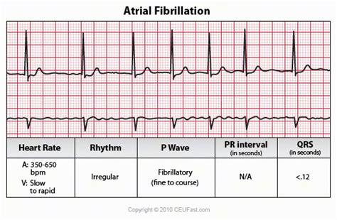 atrial fibrillation diagram ekg interpretation course ceufast nursing