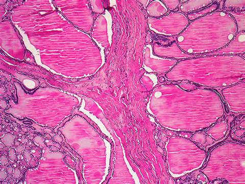 Colloid Goitre Pathology Outlines by 184a Colloid Goiter