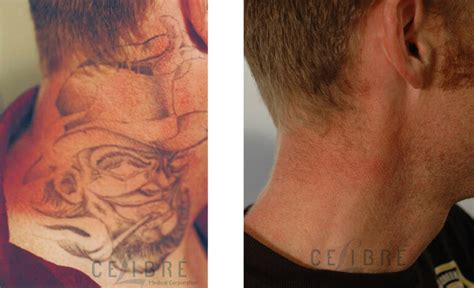 laser tattoo removal raised skin 14 laser removal american