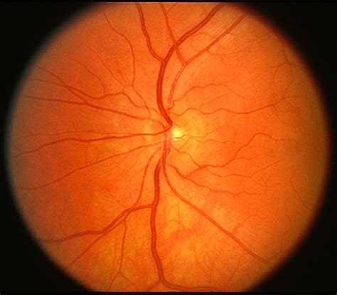 fundus eye photo normal fundus photo retina image bank