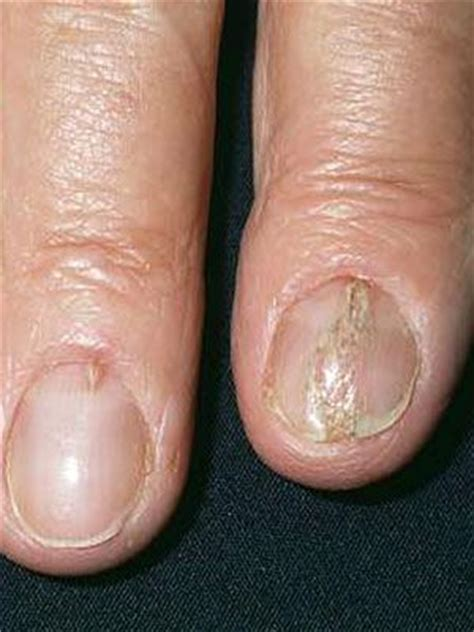 split toenail what are the white spots on your nails trying to tell you everyday health