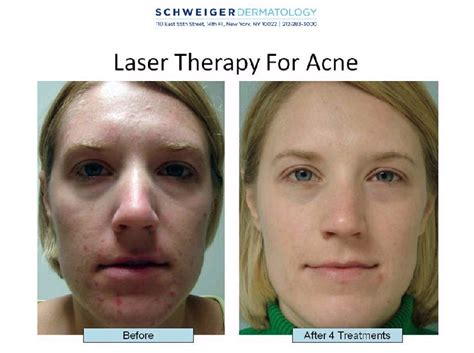 image gallery light acne treatment