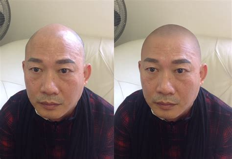 tattooed hair for bald men great tips to keep your new skalp micro pigmentation hair