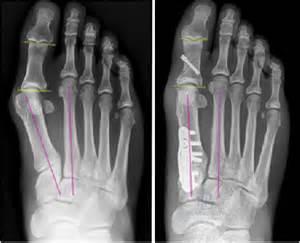 Akin Bunionectomy Mastering The Akin Osteotomy Podiatry Today