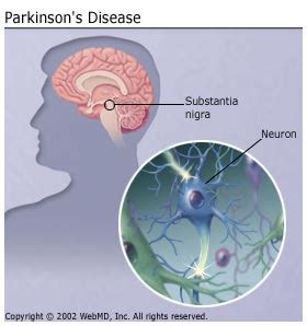 What causes parkinson s age genetics environment and other factors