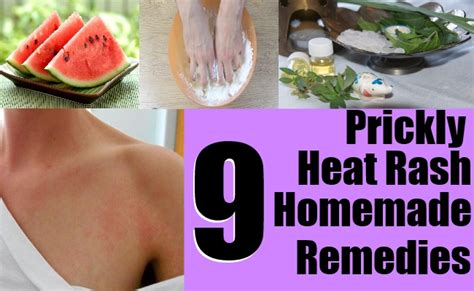 9 prickly heat rash remedies home