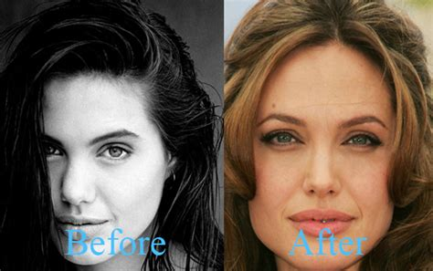 plastic surgery or natural aging changes july 2014 hollywood a hole or not