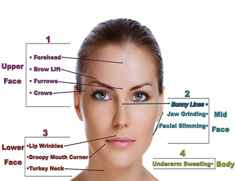 botox injection for migraines diagram botox injections for migraines diagrams botox injections