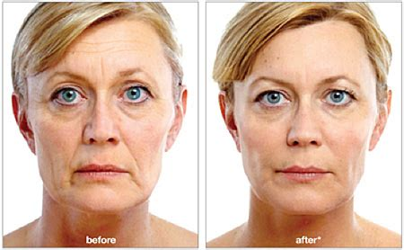 juvederm voluma xc chattanooga injectables center for