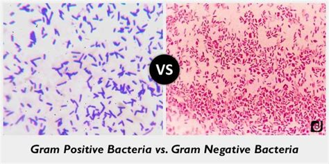 what color is gram positive difference between gram positive and gram negative bacteria