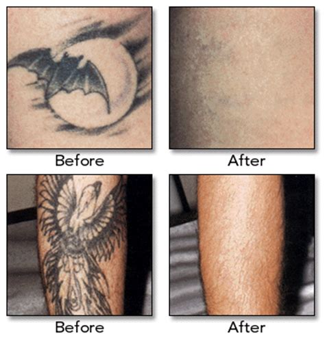 how tattoos are removed plastic surgery with the removal