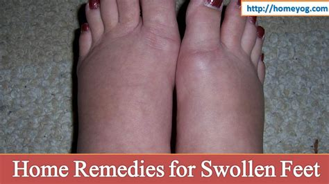 50 home remedies for swollen water retention and