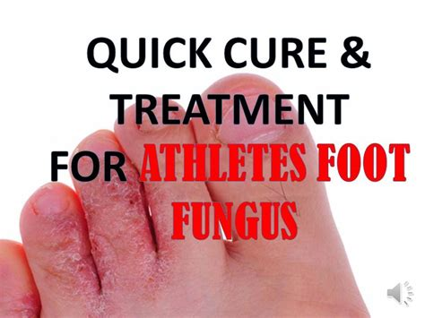 how to kill athlete s foot in shoes cure and treatment athlete s foot quickly