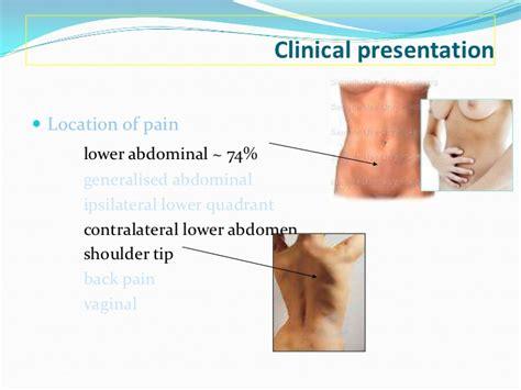ectopic pregnancy shoulder pain