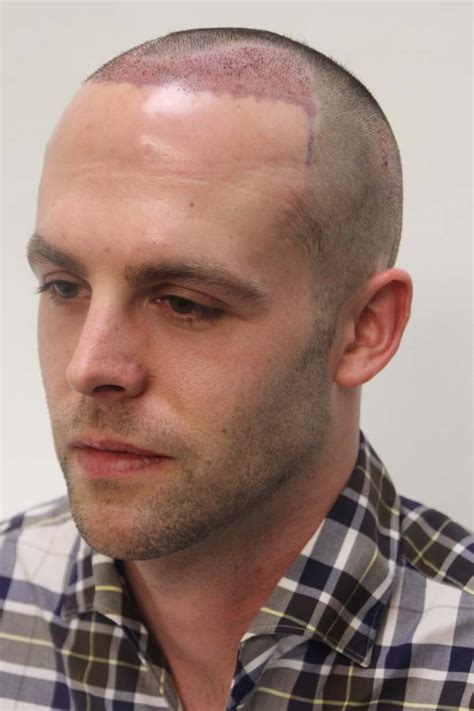 to bald hair cut net crown area is left longer such balding crown buzz cut before and after short hairstyle 2013