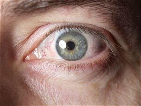 eye infection symptoms eye infections fungal mycosis ocular mycotic infections ocular ocular infections