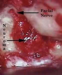 Acoustic neuroma hearing loss michigan ear institute farmington