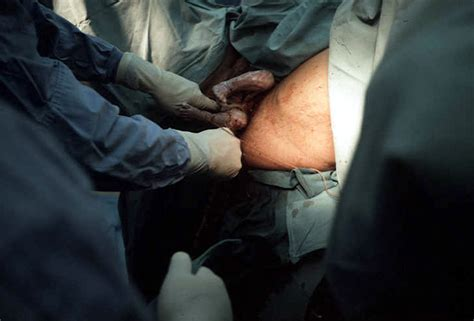 footling breech c section pregnancy and delivery at breech presentation