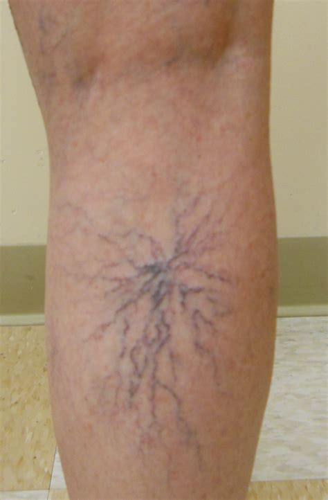 spider veins on the legs treatments 187 spider veins