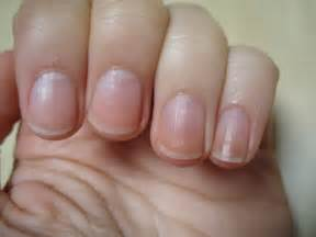 gallery for gt healthy nails men